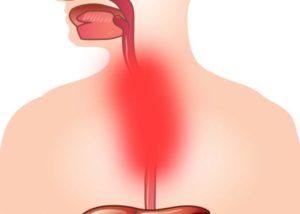 Симптомы болезни - боли во время глотания