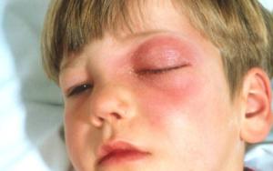 Воспалительные заболевания глазницы