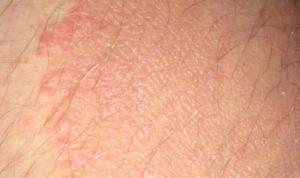 Содранная кожа на члене