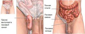 Симптомы болезни - боли в области паха