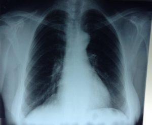 Релаксация диафрагмы справа, кардио-диафрагмальная спайка