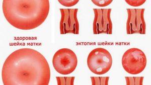 Біль під час статевого акту та на огляді у геніколога