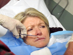 Рваная рана верхней губы