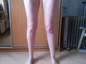 Одна нога толще другой