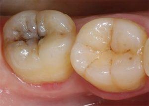 Симптомы болезни - боли в зубах