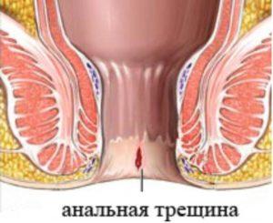 Пульсирование в заднем проходе