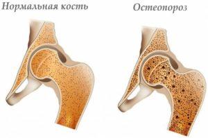 Что такое остеопороз? Что вам необходимо знать