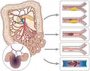 Ишемия кишечника