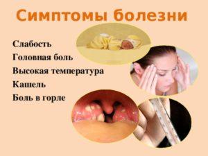 болит горло 3 месяца.Поднимается температура,слабость,ломота