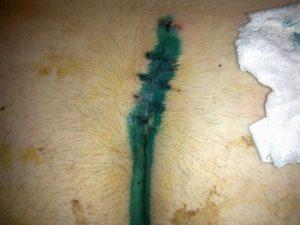 Осталась нитка которая выходит на ружу после операции. Это опасно?