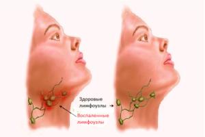 Красное горло и увеличены лимфоузлы.