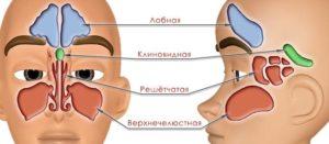 Острое и хроническое воспаление клиновидной пазухи
