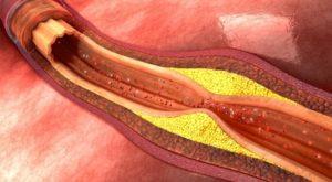 Импотенция и проблемы с кровеносными сосудами