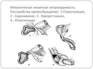 Странгуляционная непроходимость кишечника