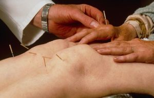 Акупунктурная терапия (акупунктура) при лечении артрита