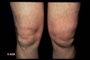 Уплотнение над коленом слева