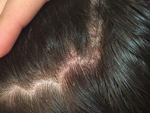 Шелушение кожи головы и выпадение волос