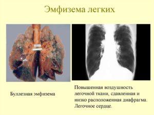 инвалидность и исход при буллезной эмфиземе легких