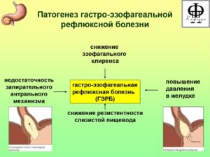 Восстановительное лечение при гастроэзофагальной рефлюксной болезни