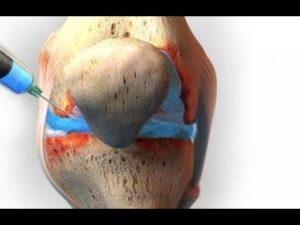 Артрит: инъекции гиалуроната при остеоартрите коленного сустава