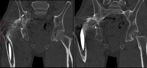 Результаты обследования МСКТ костей таза