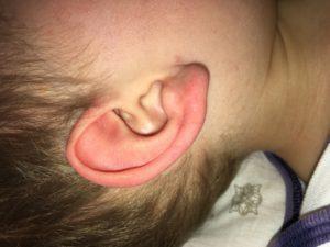 шишка в ухе у ребенка