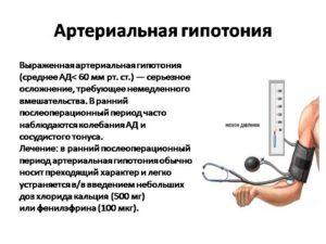 Лечение артериальной гипотензии (гипотония)