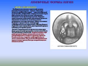 Отдельные (атипичные) формы ангин