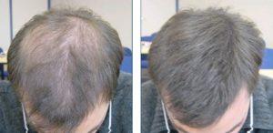раньше были густые волосы, а сейчас очень тонкие и редкие, видно залысины