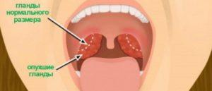 сильный кашель после аденотомии и тонзилотомии