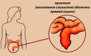 Проктит при беременности