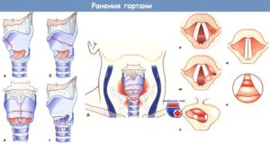 Ранения  и травмы глотки