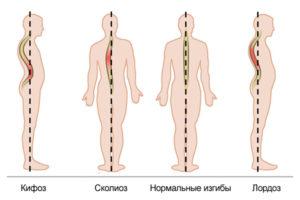 В чем разница между сколиозом и кифозом?