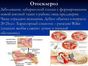 Отосклероз
