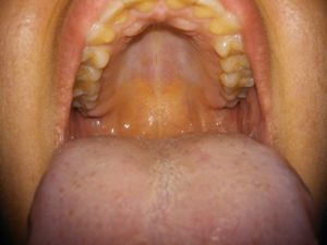 Симптомы болезни - боли во рту