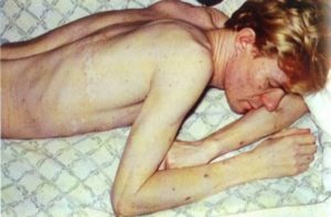 Усталость у людей с ВИЧ