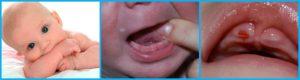 Прививки при прорезывании зубов (ребенку 6 мес.)