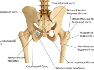 Эностоз крыла подвздошной кости справа