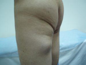 Уплотнение в мышечной ткани