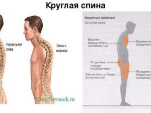 Круглая спина