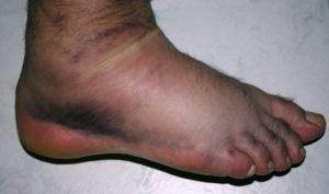 синеет нога