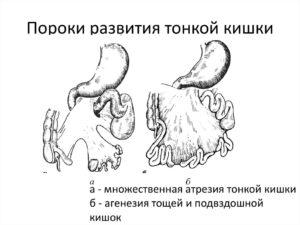 Аномалии и пороки развития тонкой кишки