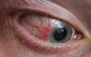 Симптомы болезни - боли в глазном яблоке