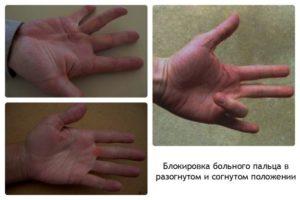 После ушиба давно не сгибается палец руки, а при попытке согнуть - боли.