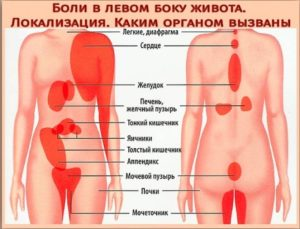 боль в левом боку в низу живота и в левом яичку