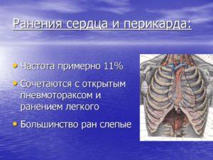 Ранения сердца и перикарда
