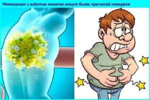 Геморрой,сильные боли внизу живота при газообразовании,а так же газоиспускании!