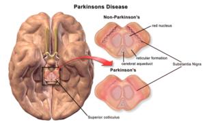 Болезнь Паркинсона: Путешествия
