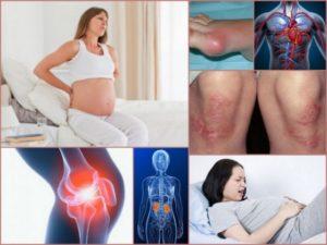 Фибромиалгия и беременность