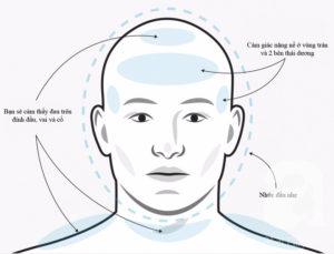 Тензионные головные боли
